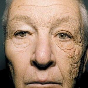 Сонце та його вплив на шкіру